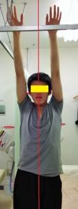 筋膜療法アフターakamaru