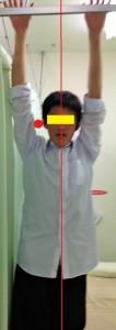 筋膜療法ビフォーakamaru